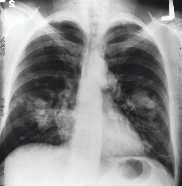 Capai 845.000 Kasus, Tingkat Kematian TBC di Indonesia Tinggi